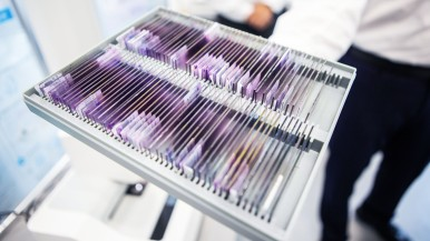 Bosch erleichtert medizinische Diagnose mithilfe künstlicher Intelligenz