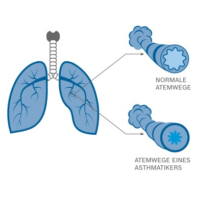 Bei Asthma sind die Atemewge verengt.