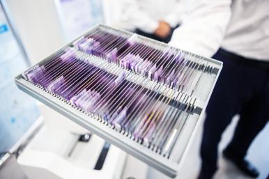 Bosch umožňuje lékařskou diagnostiku pomocí umělé inteligence
